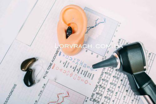 протезирование на два уха фото