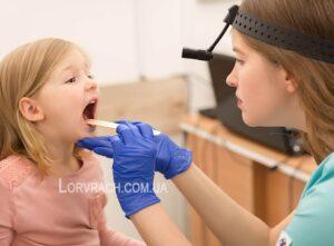 Промывание лакун небных миндалин для детей